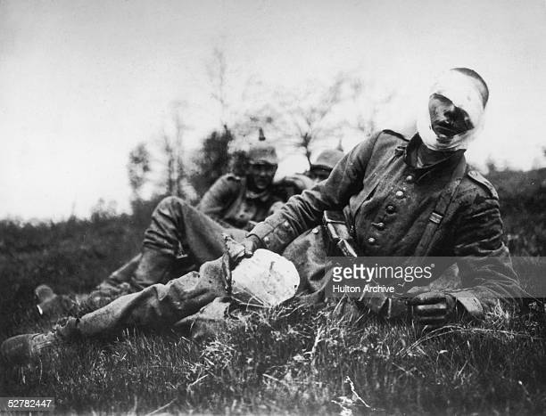 A wounded German soldier 18th May 1915