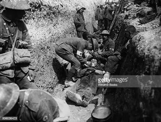 Wounded in trenches 1st day of Somme British Front France Battle Somme