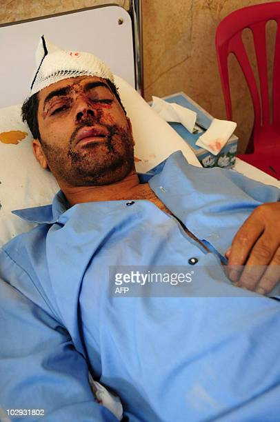 A wounded Iranian man rests at a hospital in the southeastern city of Zahedan on July 16 a day after twin suicide bombings targeted a Shiite mosque...