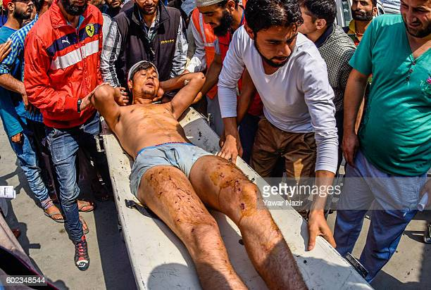 A wounded Kashmir Muslim man is carried on a gurney inside a hospital after Indian government forces fired pellets at him in his village in Srinagar...
