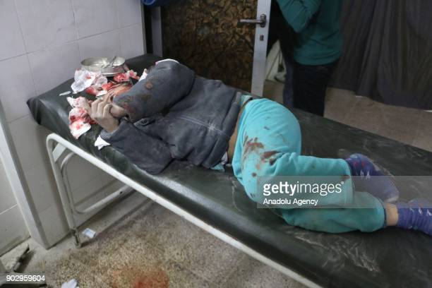 A wounded kid waits for treatment at a hospital after warplanes belonging to Assad Regime carried out airstrikes in the deescalation zone of Sekba...