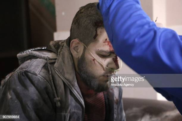 A wounded man gets treatment at a hospital after warplanes belonging to Assad Regime carried out airstrikes in the deescalation zone of Sekba town of...