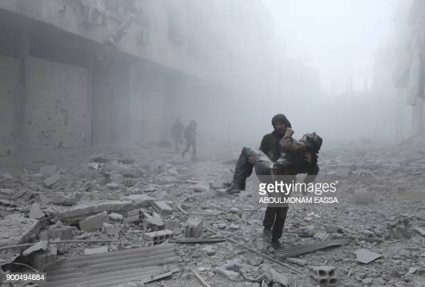 TOPSHOT A wounded man is carried following an air strike on the rebelheld besieged town of Arbin in the eastern Ghouta region on the outskirts of the...
