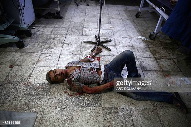 Wounded man is seen on the floor at a make shift hospital in the rebel-held area of Douma, east of the capital Damascus, following shelling and air...