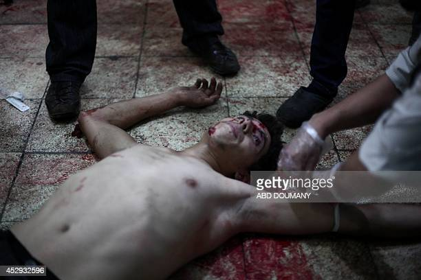 A wounded man lies on the ground of a makeshift hospital following reported shelling by Syrian government forces on the central market of the...