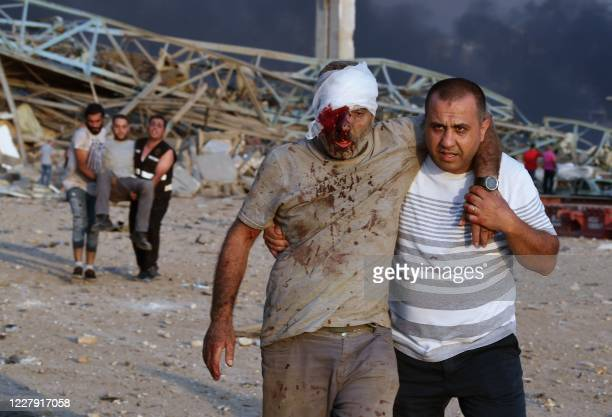 Wounded men are evacuated following of an explosion at the port of the Lebanese capital Beirut, on August 4, 2020. - Rescuers searched for survivors...