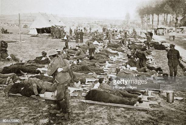 Wounded men waiting to be taken away to a clearing station France World War I 1916 During the Battle of the Somme Artist Unknown