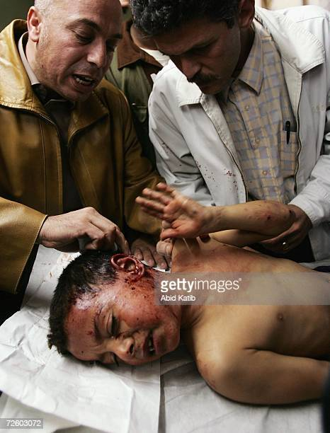 A wounded Palestinian boy is treated in the AlShifa hospital after a car was targetted in an Israel Air Force strike on November 19 in Gaza City Gaza...