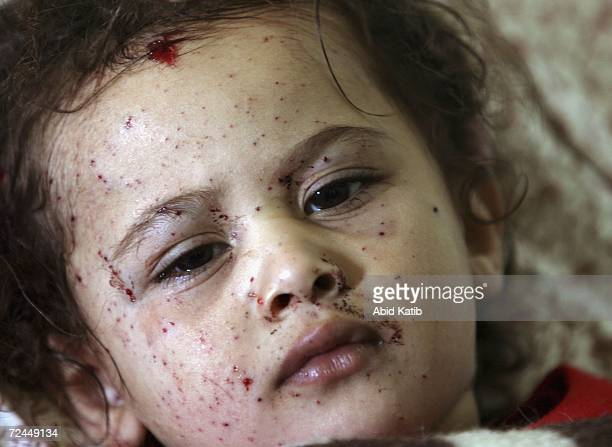 A wounded Palestinian child Malak AlAthamneh lies at the Kamal Odwan hospital after Israeli tanks fired on homes in Beit Hanoun November 8 2006 in...