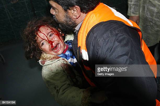 A wounded Palestinian child screams as she arrives to the AlShifa hospital after an Israeli air strike January 1 2009 in Gaza City the Gaza Strip...