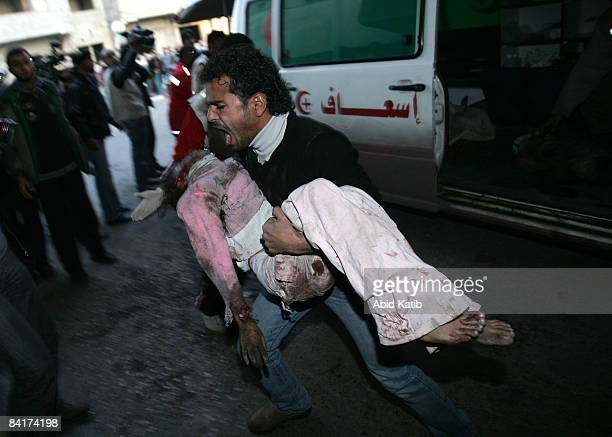 A wounded Palestinian girl arrives at the AlShifa hospital on January 5 2009 in Gaza City Gaza Israel is intensifying its widescale ground assault...