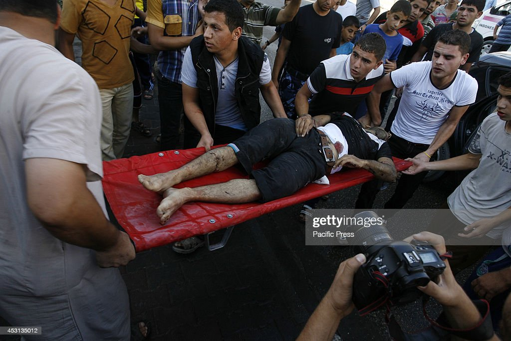 A wounded Palestinian man rushed to the hospital  after an... : ニュース写真
