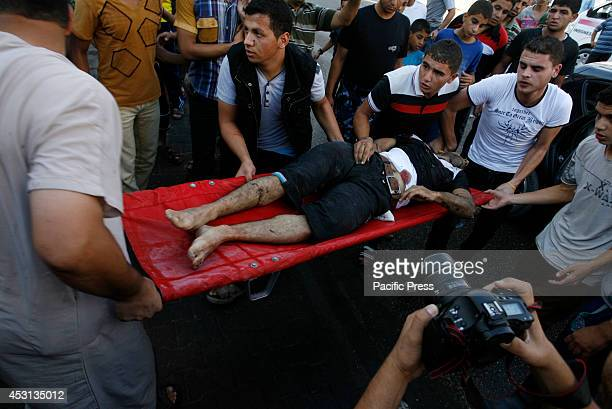 Wounded Palestinian man rushed to the hospital after an Israeli air strike, in Rafah, in the Southern Gaza Strip. At least 10 people were killed in a...