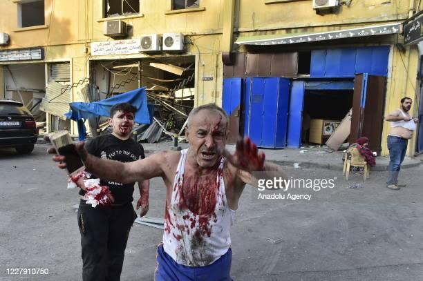 Wounded people are seen near the site after a fire at a warehouse with explosives at the Port of Beirut led to massive blasts in Beirut, Lebanon on...