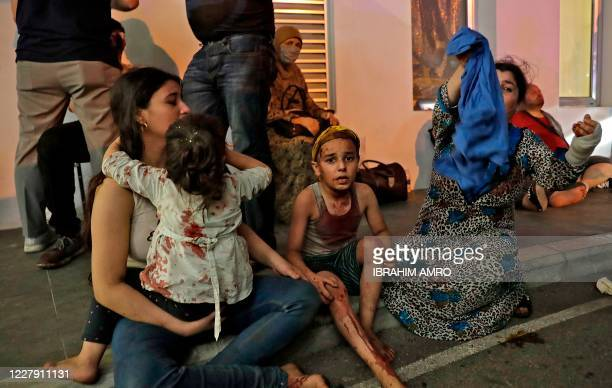 Wounded people wait to received help outside a hospital following an explosion in the Lebanese capital Beirut on August 4, 2020. - Two huge explosion...