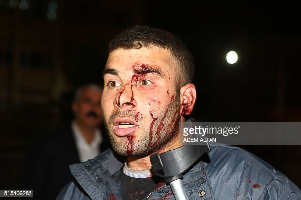 A wounded person reacts near the scene of a blast in Ankara on March 13 2016 At least 27 people were killed and 75 others wounded in a blast in the...