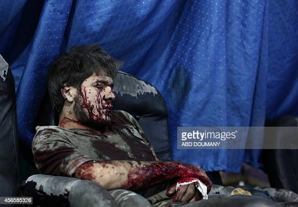 A wounded Syrian awaits treatment at a makeshift hospital in the besieged rebel bastion of Douma northeast of the Syrian capital Damascus on October...