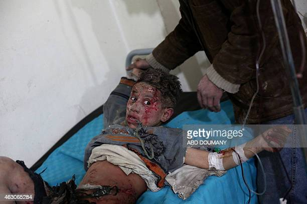 A wounded Syrian boy reacts as he receives treatment at a clinic in the rebelheld area of Douma east of the capital Damascus following reported air...