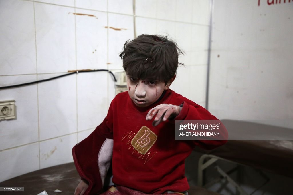 A wounded Syrian boy waits for treatment a make-shift hospital in Kafr Batna following Syrian government bombardments on the besieged Eastern Ghouta region on the outskirts of the capital Damascus on February 21, 2018. / AFP PHOTO / Amer ALMOHIBANY