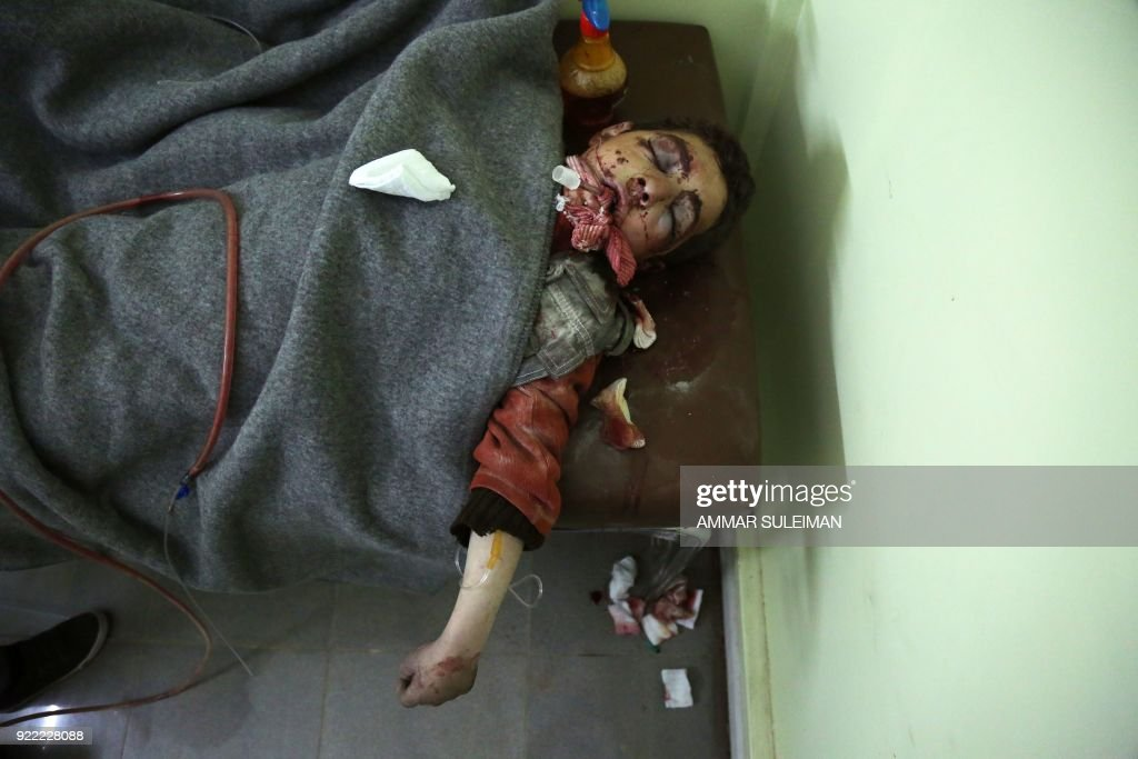 A wounded Syrian child is seen at a make-shift hospital in Kafr Batna following Syrian government bombardments on the besieged Eastern Ghouta region on the outskirts of the capital Damascus on February 21, 2018. Syrian jets carried out more deadly raids on Eastern Ghouta as Western powers and aid agencies voiced alarm over the mounting death toll and spiralling humanitarian catastrophe. PHOTO / Ammar SULEIMAN