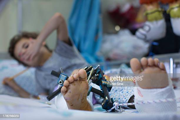A wounded Syrian child is treated at the Israeli Ziv hospital on August 28 2013 in the northern town of Safed Israel About 140 Syrians who have been...
