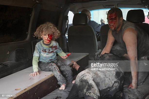 TOPSHOT A wounded Syrian child looks on from inside a vehicle following a reported airstrike on Kafr Batna in the rebelheld Eastern Ghouta area on...