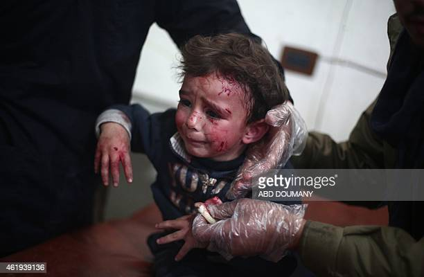 A wounded Syrian child receives treatment at a makeshift hospital in the rebel held area of Douma north east of the capital Damascus after he was...