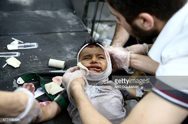 A wounded Syrian child receives treatment at the Unified Medical Office for Douma a makeshift medical centre in the rebelheld town of Douma northeast...