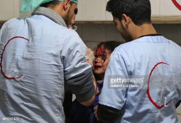 A wounded Syrian girl receives treatment at a makeshift hospital in Kafr Batna following Syrian government bombardments on the besieged Eastern...
