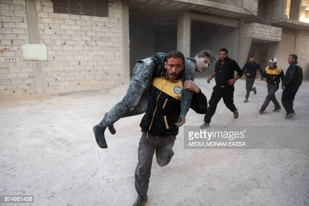 TOPSHOT A wounded Syrian is carried by a member of the Syrian Civil Defence known as the white helmets to a hospital in the rebelheld besieged town...