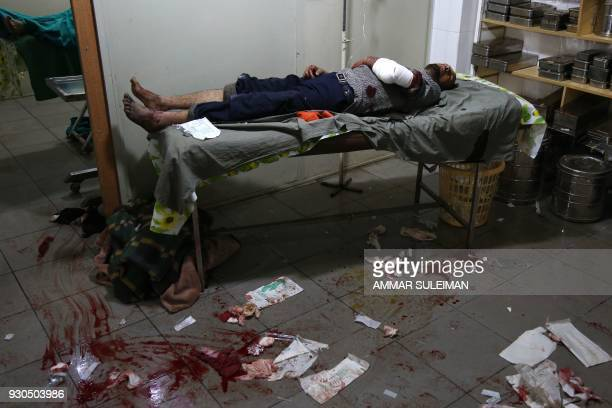 TOPSHOT A wounded Syrian man is seen at a make shift hospital following government bombardment in Kafr Batna in the rebelheld enclave of Eastern...