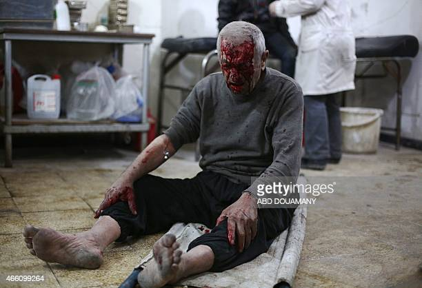 A wounded Syrian man looks down as he waits for treatment at a clinic in the rebelheld area of Douma east of the capital Damascus following reported...