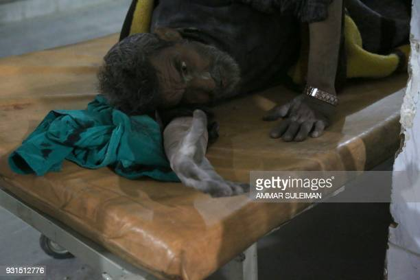 TOPSHOT A wounded Syrian man receives treatment at a make shift hospital following government bombardment in Kafr Batna in the rebelheld enclave of...