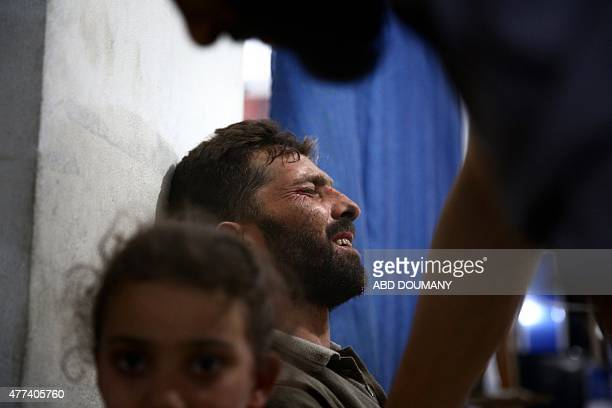 A wounded Syrian man waits for treatment at the Unified Medical Office for Douma a makeshift medical centre in the rebelheld town of Douma northeast...