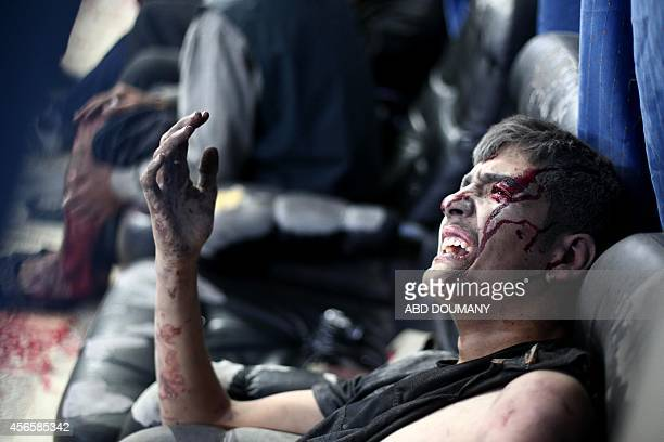 A wounded Syrian reacts to the pain at a makeshift hospital in the besieged rebel bastion of Douma northeast of the Syrian capital Damascus on...
