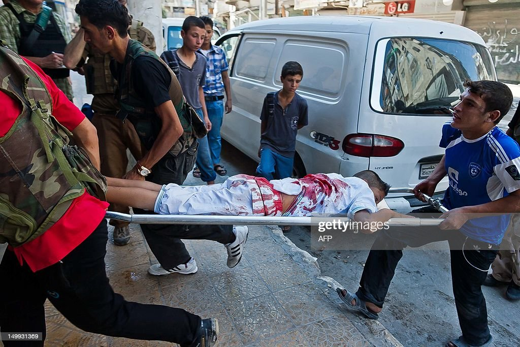 A wounded Syrian youth is carried on a s : News Photo