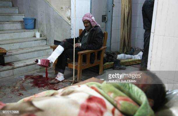 TOPSHOT Wounded Syrians wait for treatment at a makeshift hospital in Kafr Batna following Syrian government bombardments on the besieged Eastern...