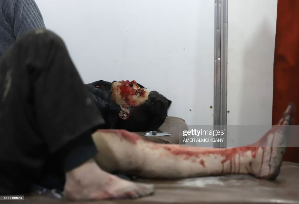 Wounded Syrians wait to receive treatment at a make-shift hospital in Kafr Batna in the besieged Eastern Ghouta region on the outskirts of the capital Damascus following Syrian government bombardments on February 21, 2018. Syrian jets carried out more deadly raids on Eastern Ghouta as Western powers and aid agencies voiced alarm over the mounting death toll and spiralling humanitarian catastrophe. PHOTO / Amer ALMOHIBANY