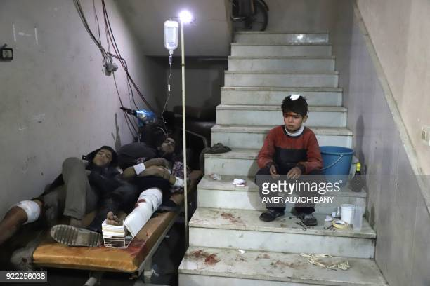 Wounded Syrians wait to receive treatment at a make-shift hospital in Kafr Batna in the besieged Eastern Ghouta region on the outskirts of the...