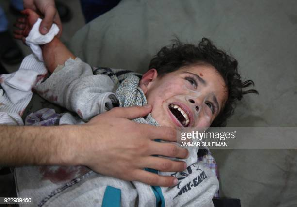 TOPSHOT Wounded twoandhalf Syrian child Mohammed Malas lies at a makeshift clinic following Syrian government bombardments in Kafr Batna in the...