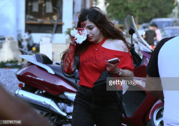 Wounded woman covers her eye following of an explosion at the port of the Lebanese capital Beirut, on August 4, 2020. - Rescuers searched for...