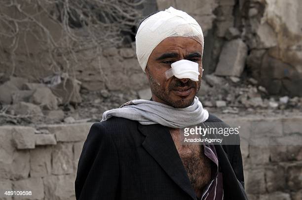 A wounded Yemeni is seen after a Saudiled coalition airstrike targeting Houthicontrolled residential areas in Babul Yemen area of Sanaa Yemen on...