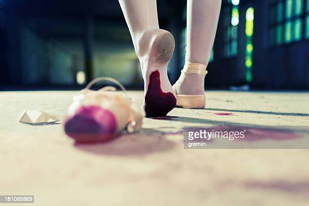 wounded young ballet dancer walking away with injured foot - bloody gore stock pictures, royalty-free photos & images