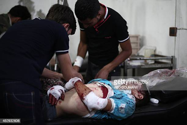 A wounded youth lies on bed as he is treated at a makeshift hospital following reported shelling by Syrian government forces on the central market of...