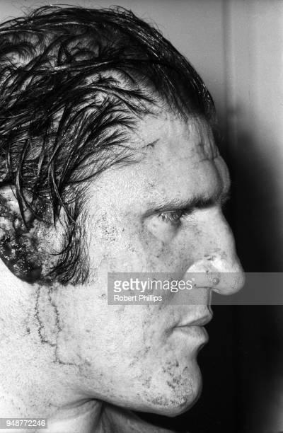 Closeup of Bruno Sammartino injury after match vs Geeto Mongol at Civic Arena Pittsburgh PA CREDIT Robert Phillips