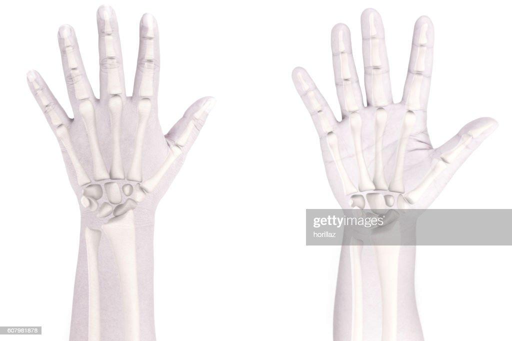 Wrist Bones Stock Photo Getty Images