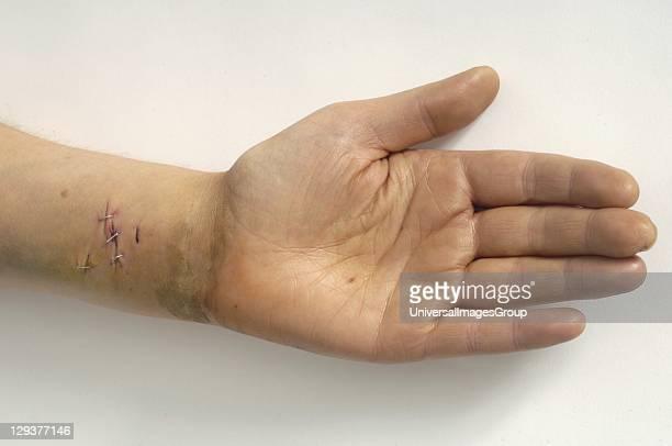 Wrists of suicide patient