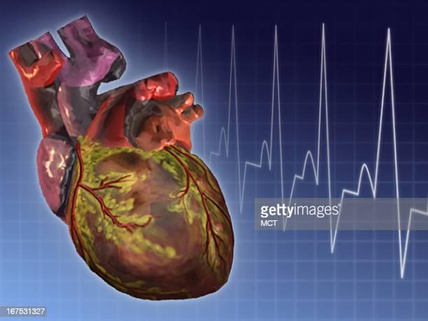x 1535 in / 52x39 mm / 177x133 pixels Image of human heart