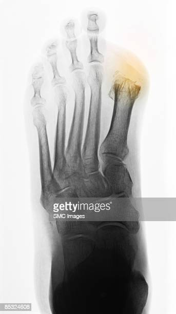 x-ray diabetic foot with toe amputations - diabetic amputation stock pictures, royalty-free photos & images