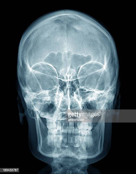 x-ray human head - human skull stock pictures, royalty-free photos & images